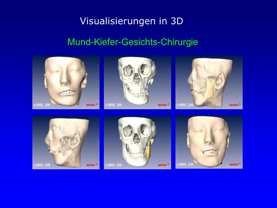 Visualisierungen in 3D Mund-Kiefer-Gesichts-Chirurgie