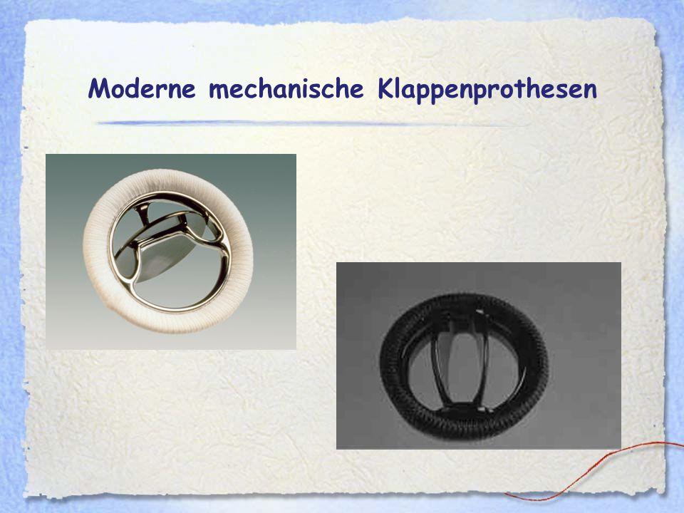 Moderne mechanische Klappenprothesen