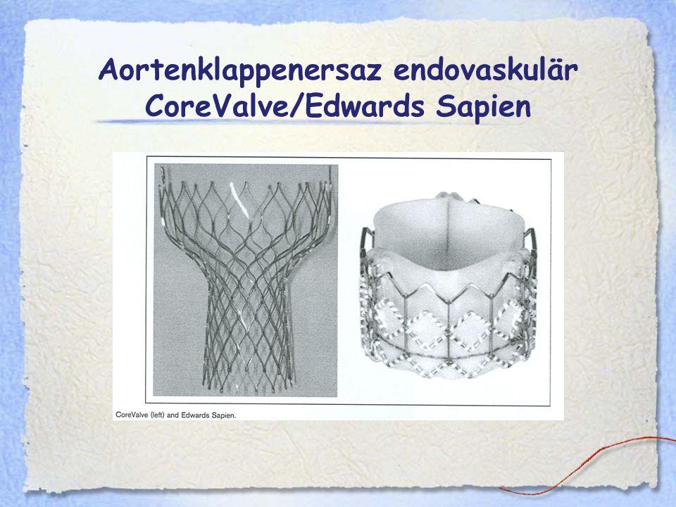 Aortenklappenersaz endovaskulär CoreValve/Edwards Sapien