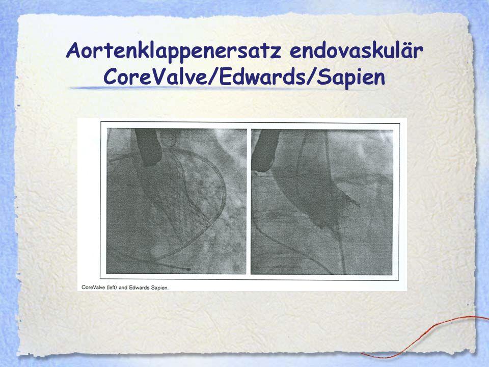 Aortenklappenersatz endovaskulär CoreValve/Edwards/Sapien