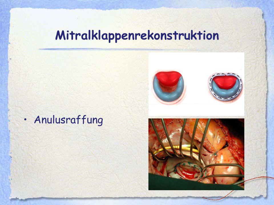 Mitralklappenrekonstruktion Anulusraffung