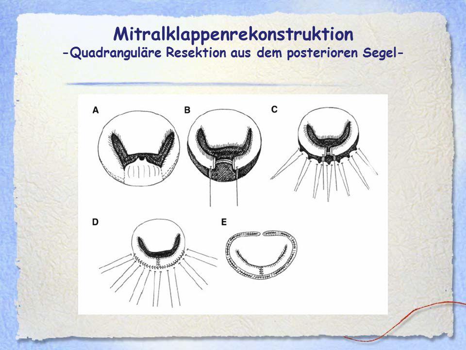 Mitralklappenrekonstruktion -Quadranguläre Resektion aus dem posterioren Segel-