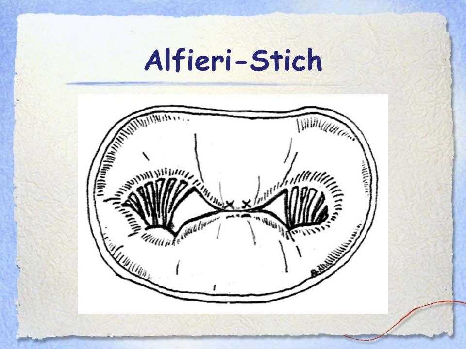 Alfieri-Stich