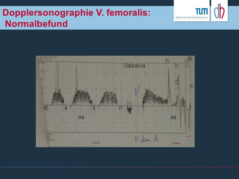 Dopplersonographie V. femoralis: Normalbefund ssas Valsalva