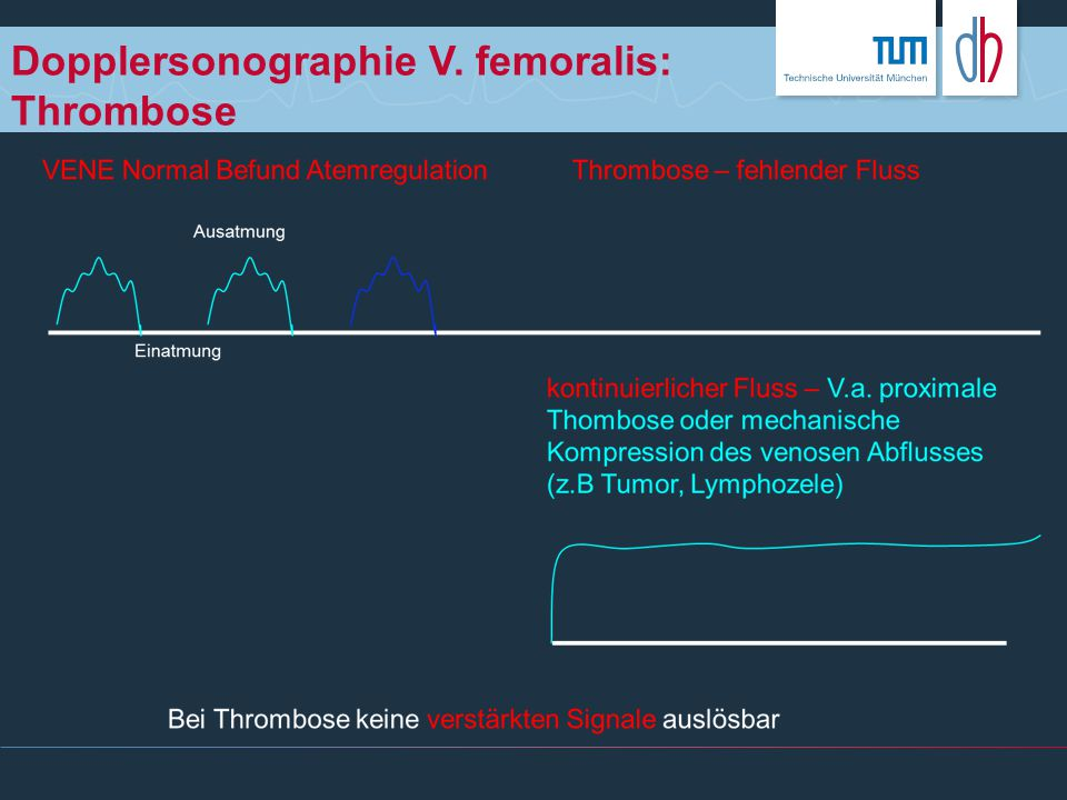 Dopplersonographie V. femoralis: Thrombose