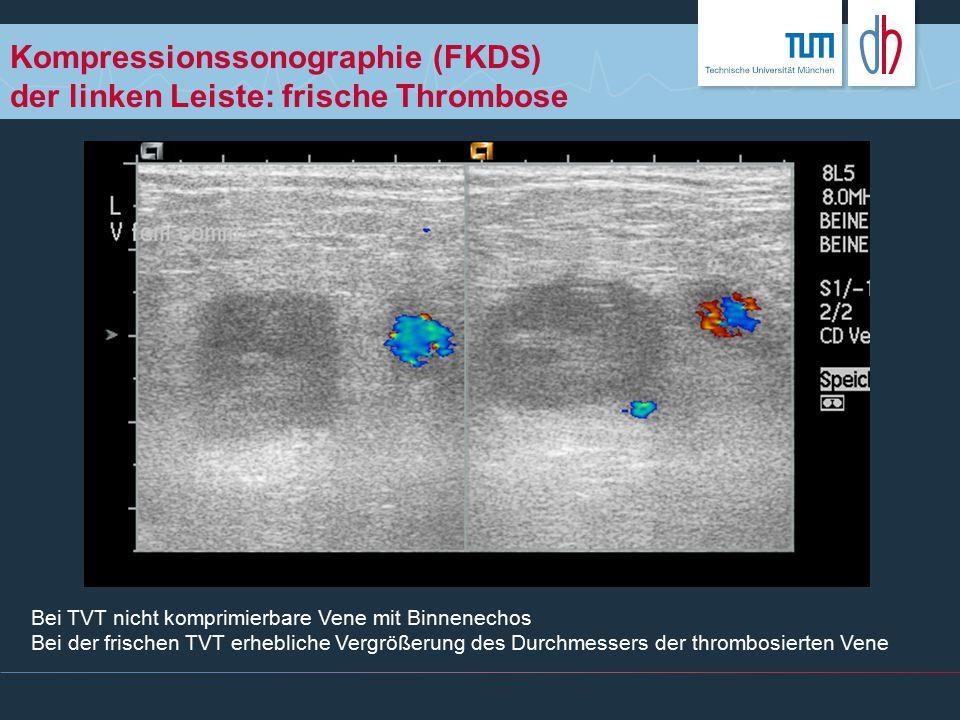 Kompressionssonographie (FKDS) der linken Leiste: frische Thrombose Bei TVT nicht komprimierbare Vene mit Binnenechos Bei der frischen TVT erhebliche