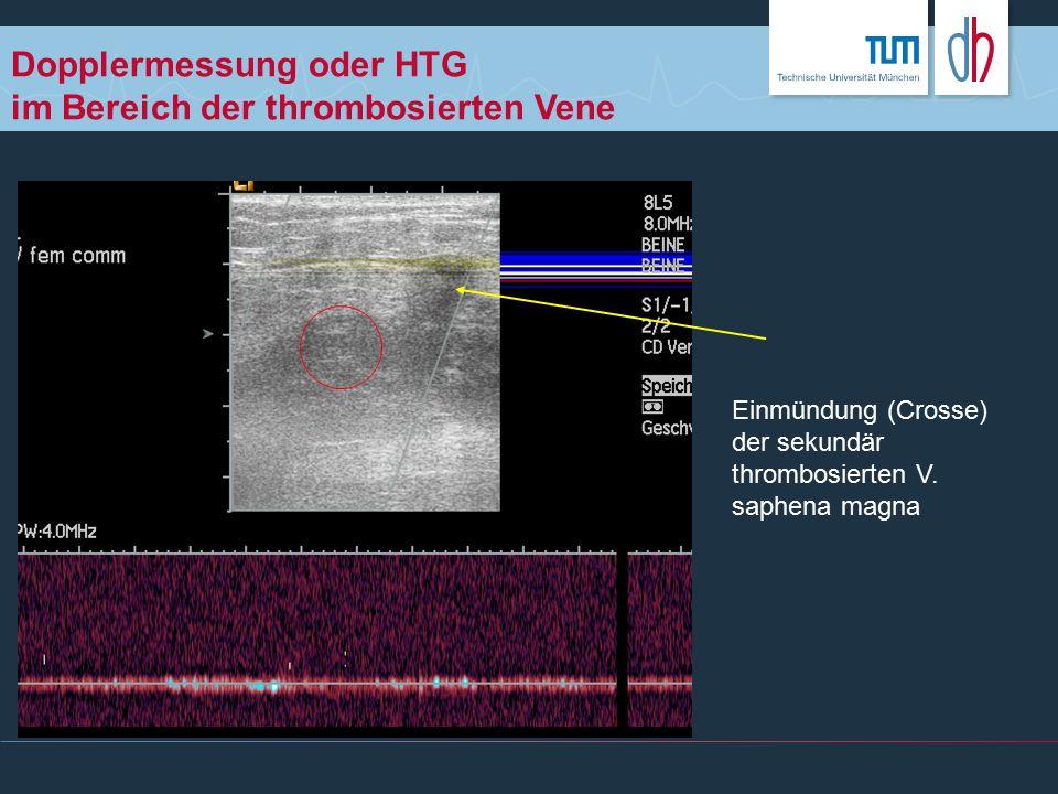 Dopplermessung oder HTG im Bereich der thrombosierten Vene Einmündung (Crosse) der sekundär thrombosierten V. saphena magna
