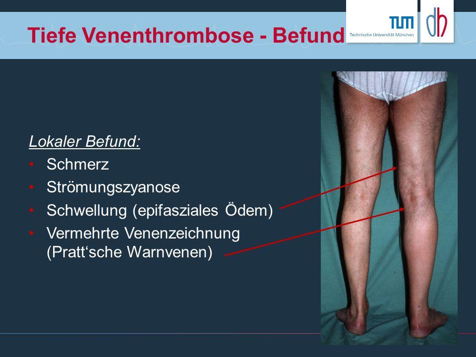 Tiefe Venenthrombose - Befund Lokaler Befund: Schmerz Strömungszyanose Schwellung (epifasziales Ödem) Vermehrte Venenzeichnung (Pratt'sche Warnvenen)