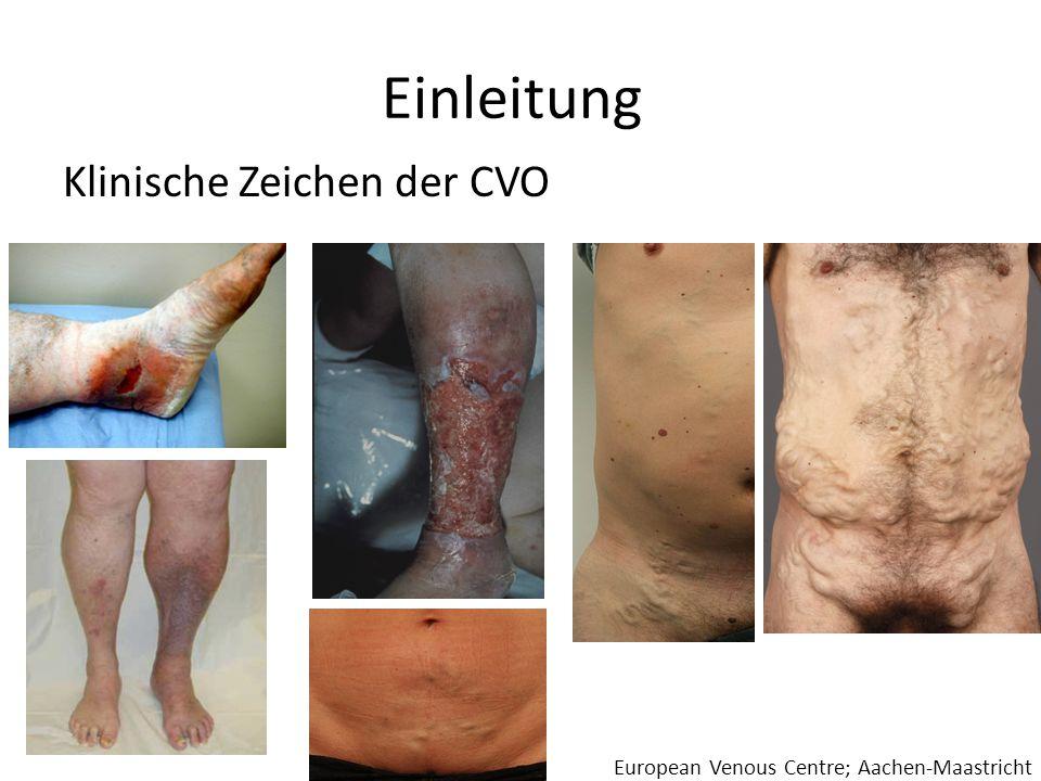 Einleitung Klinische Zeichen der CVO European Venous Centre; Aachen-Maastricht