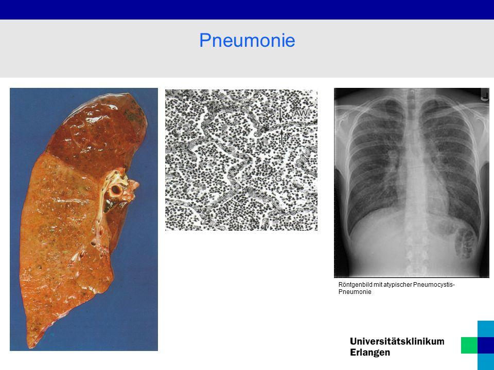 Pneumonie Röntgenbild mit atypischer Pneumocystis- Pneumonie