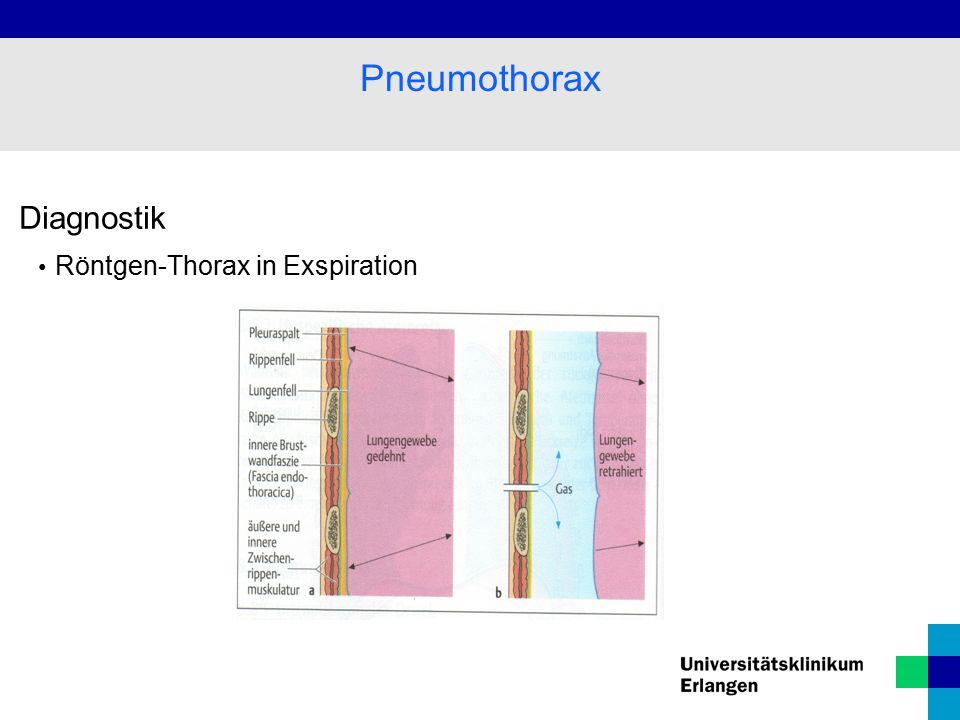 Diagnostik Röntgen-Thorax in Exspiration Pneumothorax
