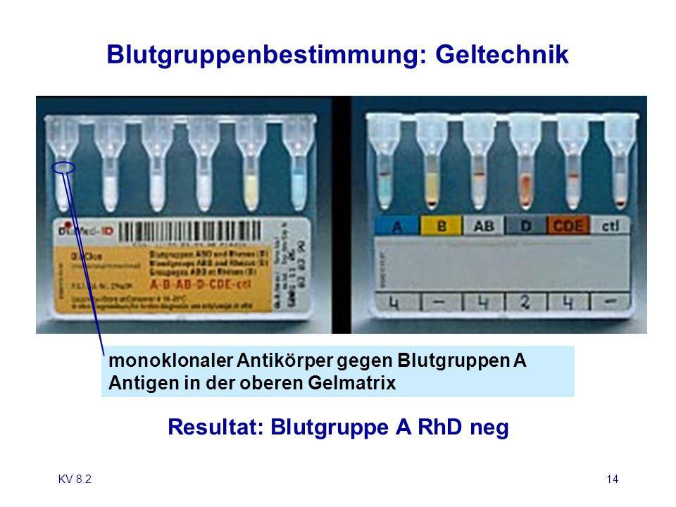 KV 8.214 Blutgruppenbestimmung: Geltechnik Resultat: Blutgruppe A RhD neg monoklonaler Antikörper gegen Blutgruppen A Antigen in der oberen Gelmatrix