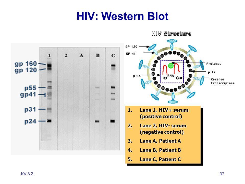 KV 8.237 HIV: Western Blot 1.Lane 1, HIV+ serum (positive control) 2.Lane 2, HIV- serum (negative control) 3.Lane A, Patient A 4.Lane B, Patient B 5.L