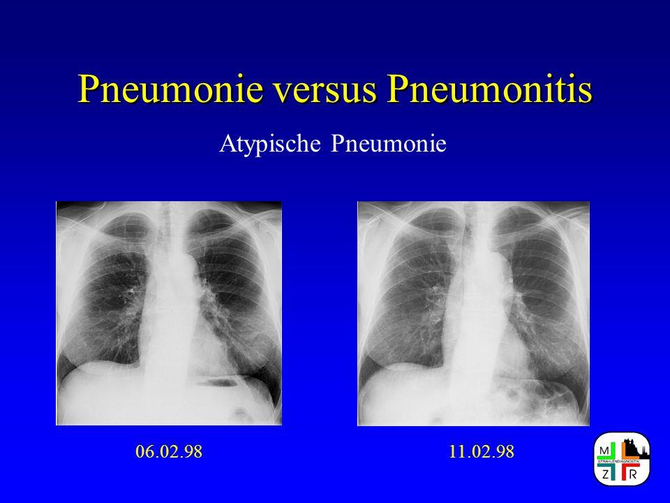 Pneumonie versus Pneumonitis Atypische Pneumonie 06.02.9811.02.98