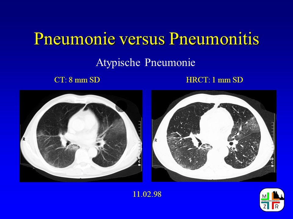 Pneumonie versus Pneumonitis Atypische Pneumonie CT: 8 mm SDHRCT: 1 mm SD 11.02.98