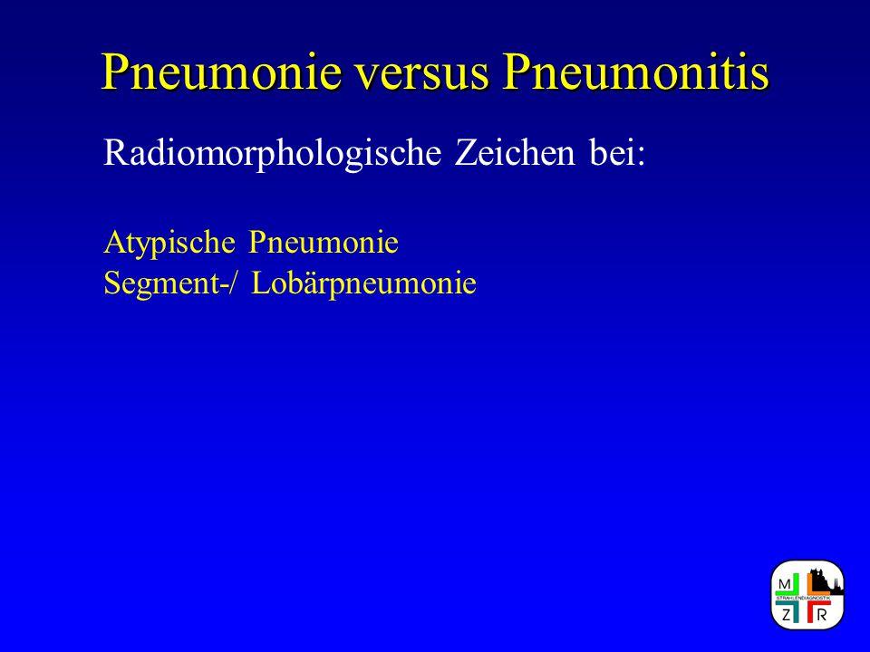 Pneumonie versus Pneumonitis Radiomorphologische Zeichen bei: Atypische Pneumonie Segment-/ Lobärpneumonie