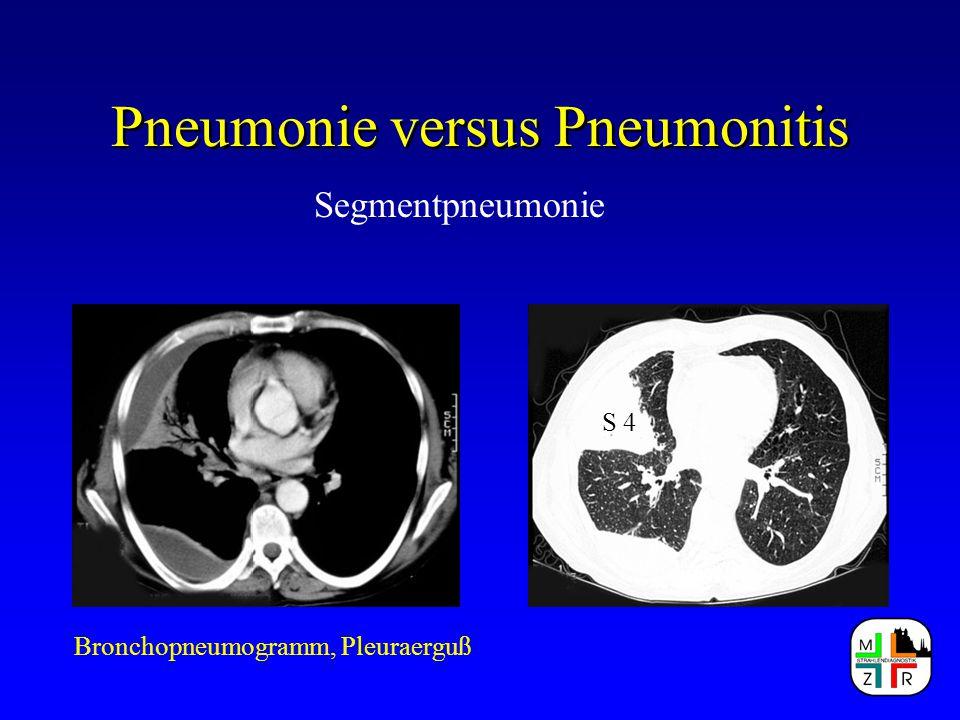 Pneumonie versus Pneumonitis Segmentpneumonie Bronchopneumogramm, Pleuraerguß S 4