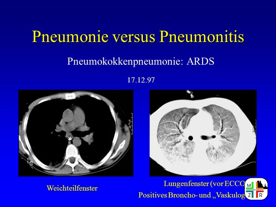 """Pneumonie versus Pneumonitis Pneumokokkenpneumonie: ARDS 17.12.97 Weichteilfenster Lungenfenster (vor ECCO) Positives Broncho- und """"Vaskulogramm"""""""