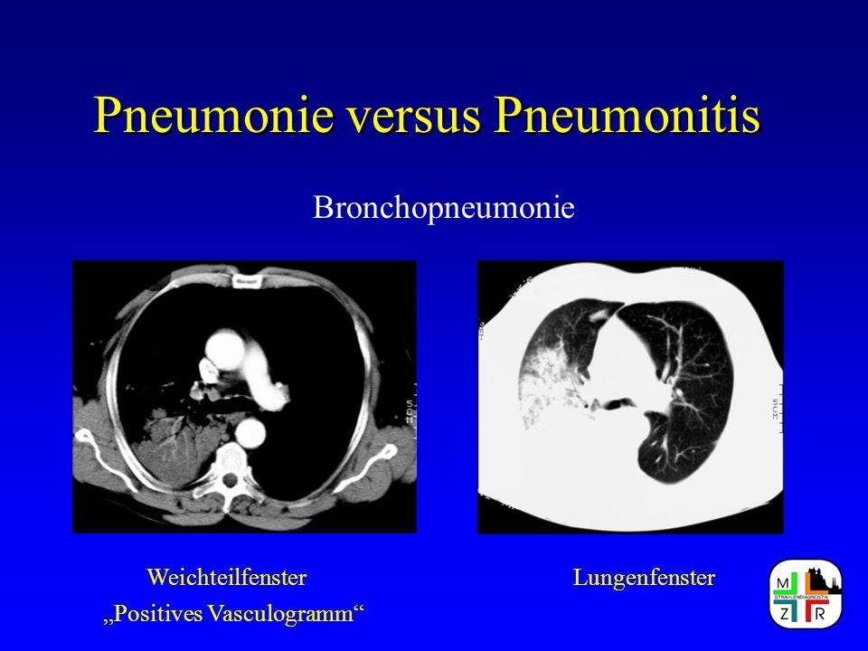 """Pneumonie versus Pneumonitis Bronchopneumonie WeichteilfensterLungenfenster """"Positives Vasculogramm"""""""