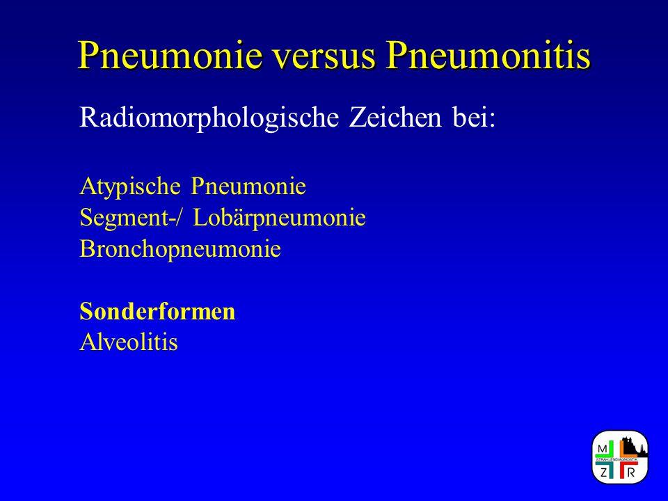 Pneumonie versus Pneumonitis Radiomorphologische Zeichen bei: Atypische Pneumonie Segment-/ Lobärpneumonie Bronchopneumonie Sonderformen Alveolitis