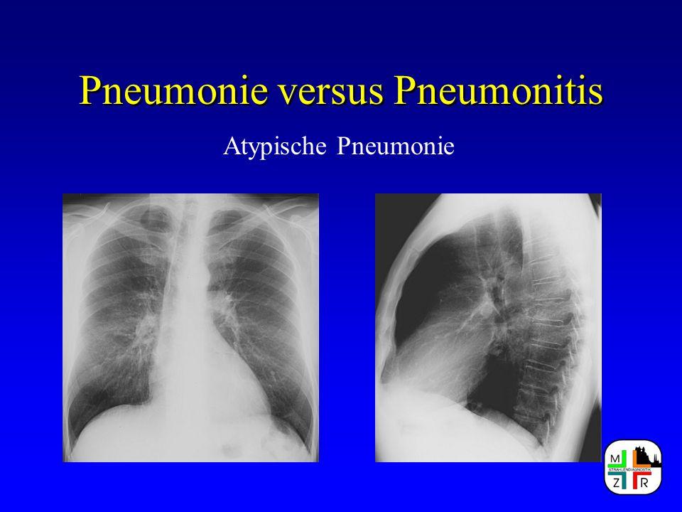 Pneumonie versus Pneumonitis Atypische Pneumonie