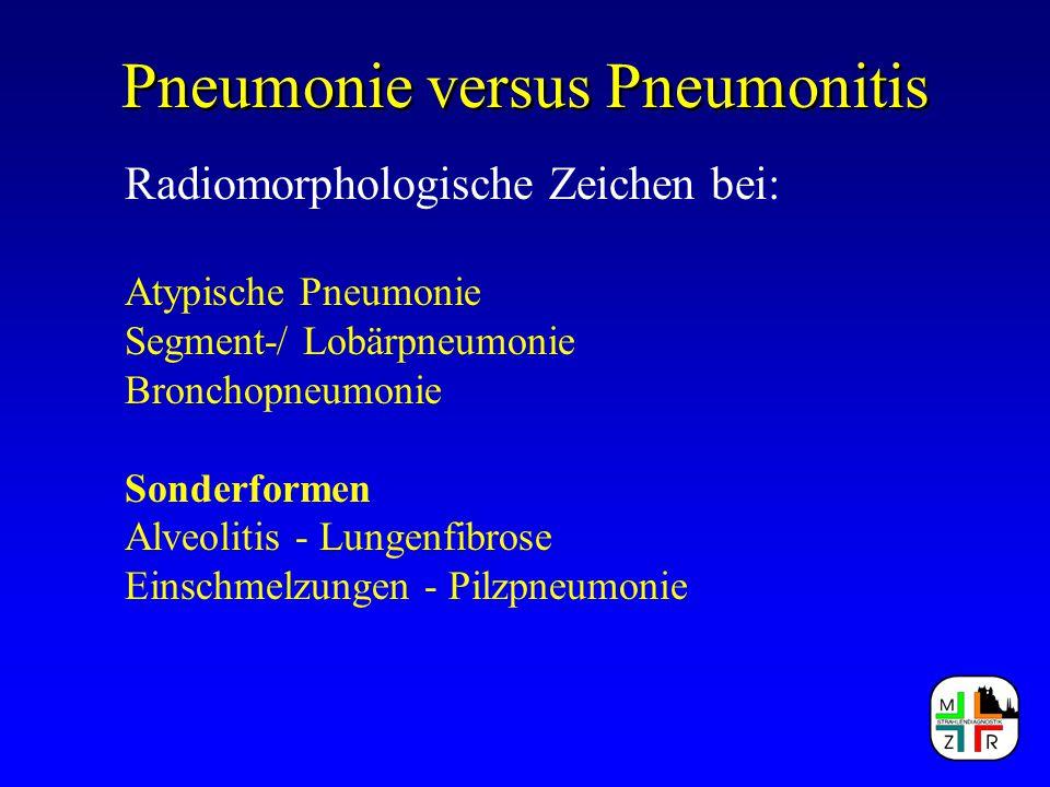 Pneumonie versus Pneumonitis Radiomorphologische Zeichen bei: Atypische Pneumonie Segment-/ Lobärpneumonie Bronchopneumonie Sonderformen Alveolitis -