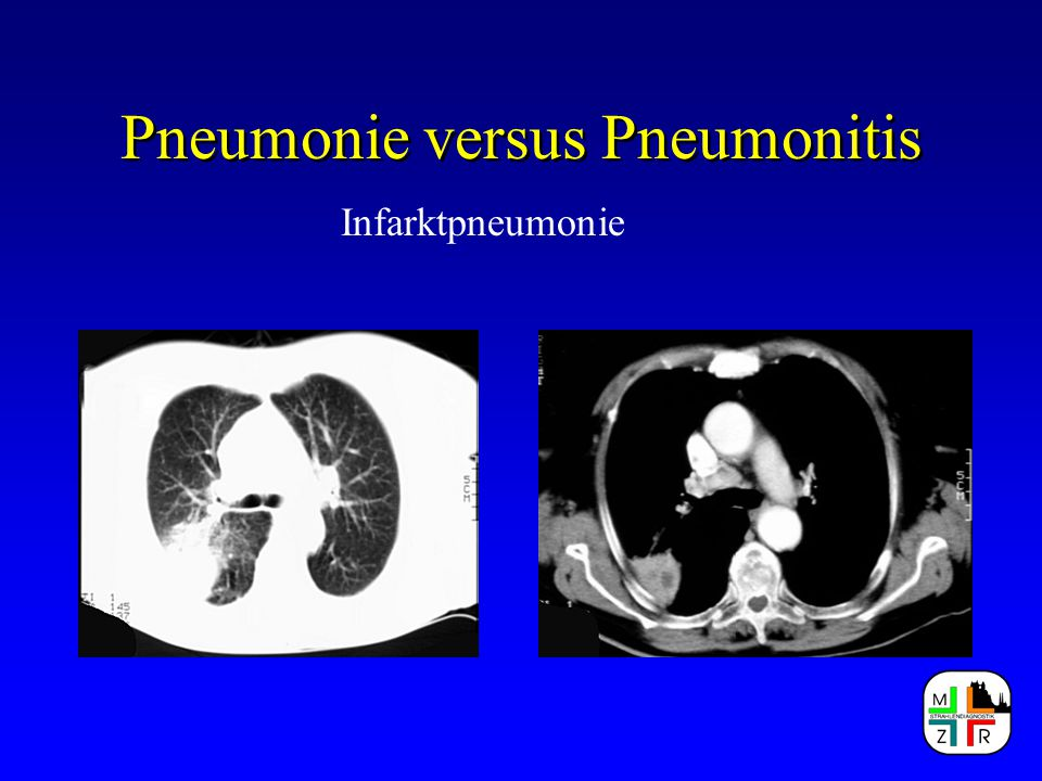 Pneumonie versus Pneumonitis Infarktpneumonie