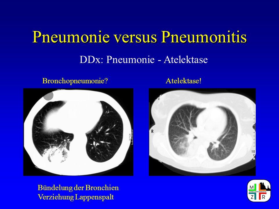 Pneumonie versus Pneumonitis DDx: Pneumonie - Atelektase Bronchopneumonie?Atelektase! Bündelung der Bronchien Verziehung Lappenspalt