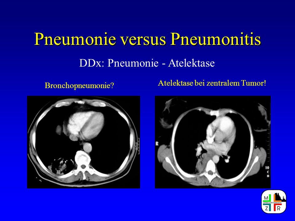 Pneumonie versus Pneumonitis DDx: Pneumonie - Atelektase Bronchopneumonie? Atelektase bei zentralem Tumor!