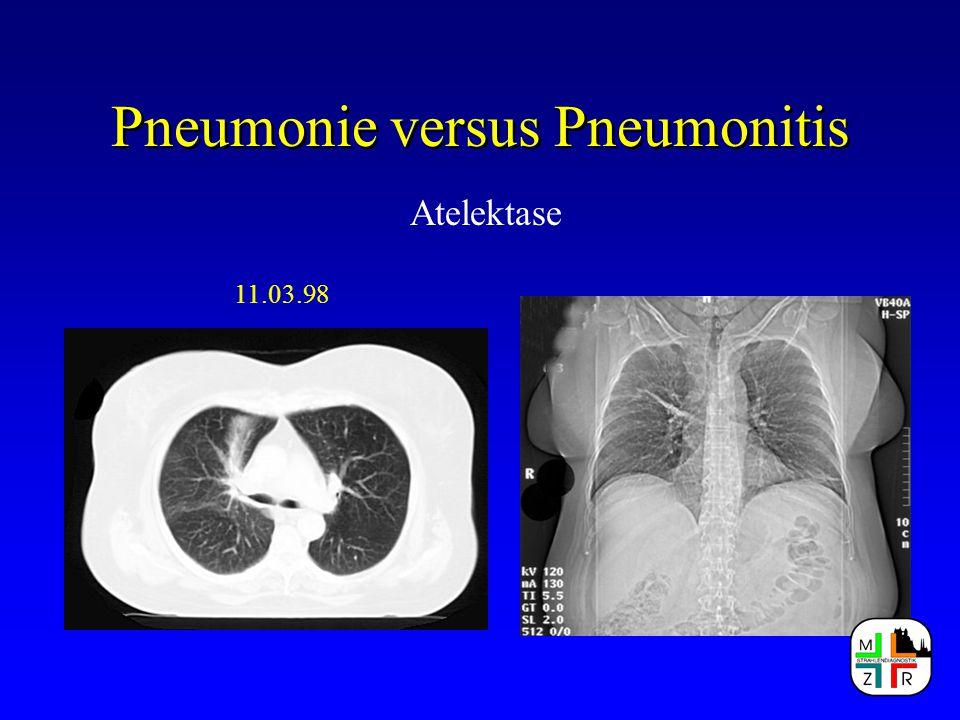 Pneumonie versus Pneumonitis Atelektase 11.03.98