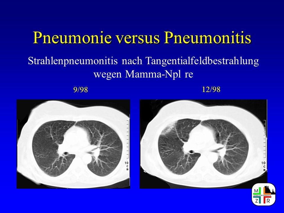 Pneumonie versus Pneumonitis Radiomorphologische Zeichen bei: Atypische Pneumonie Segment-/ Lobärpneumonie Bronchopneumonie Sonderformen Alveolitis - Lungenfibrose Einschmelzungen - Pilzpneumonie