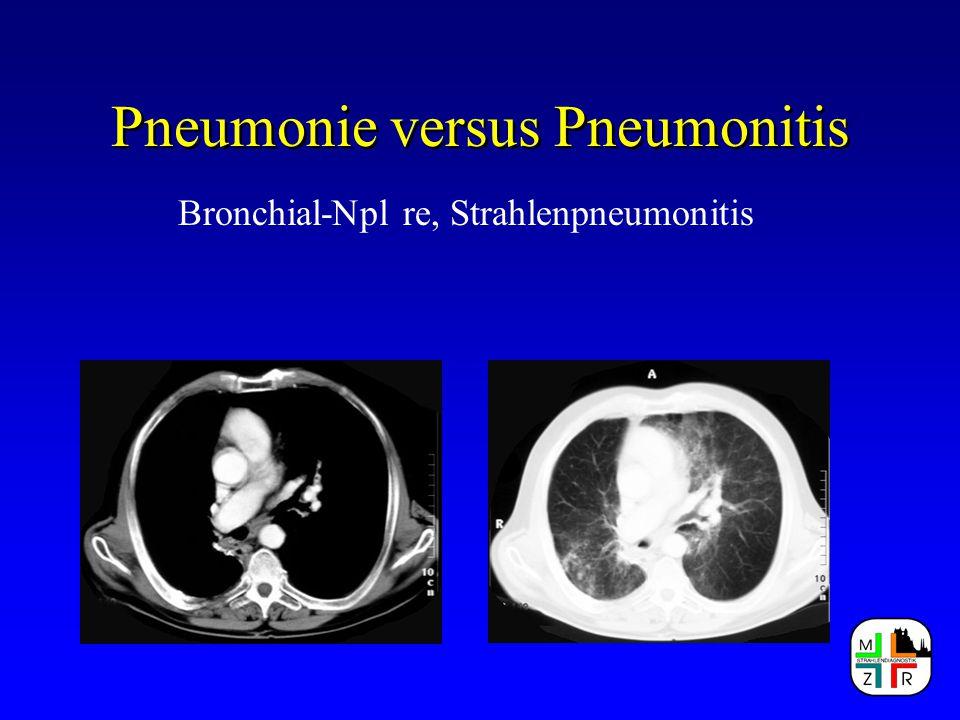 Pneumonie versus Pneumonitis Radiomorphologische Zeichen bei: Atypische Pneumonie Segment-/ Lobärpneumonie Bronchopneumonie Sonderformen Alveolitis - Lungenfibrose Einschmelzungen - Pilzpneumonie Infarktpneumonie - vaskuläre Befunde