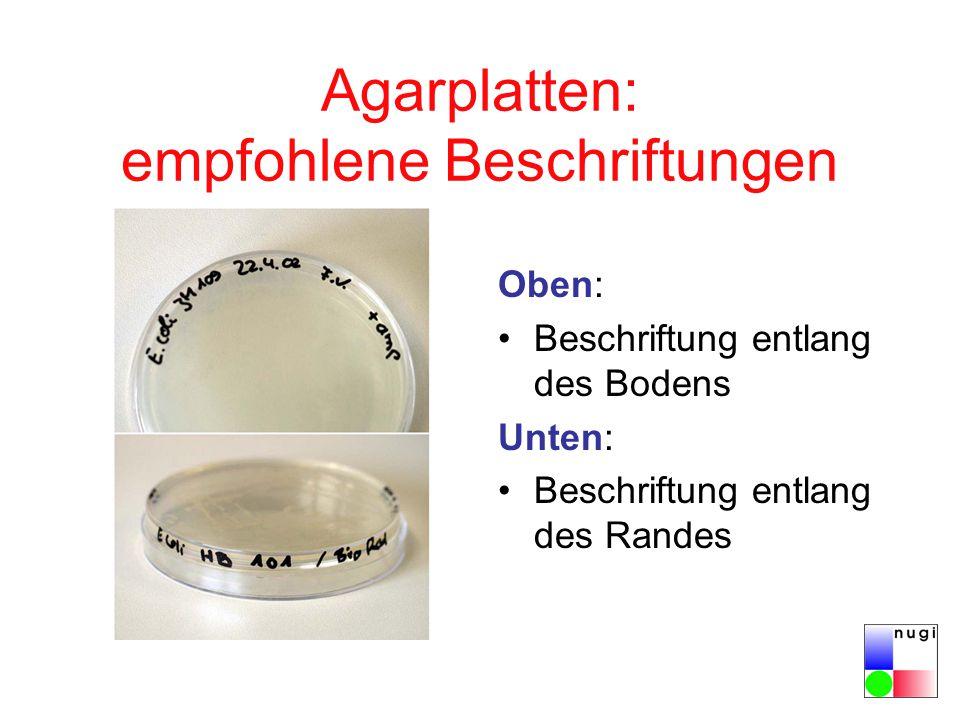Agarplatten: empfohlene Beschriftungen Oben: Beschriftung entlang des Bodens Unten: Beschriftung entlang des Randes