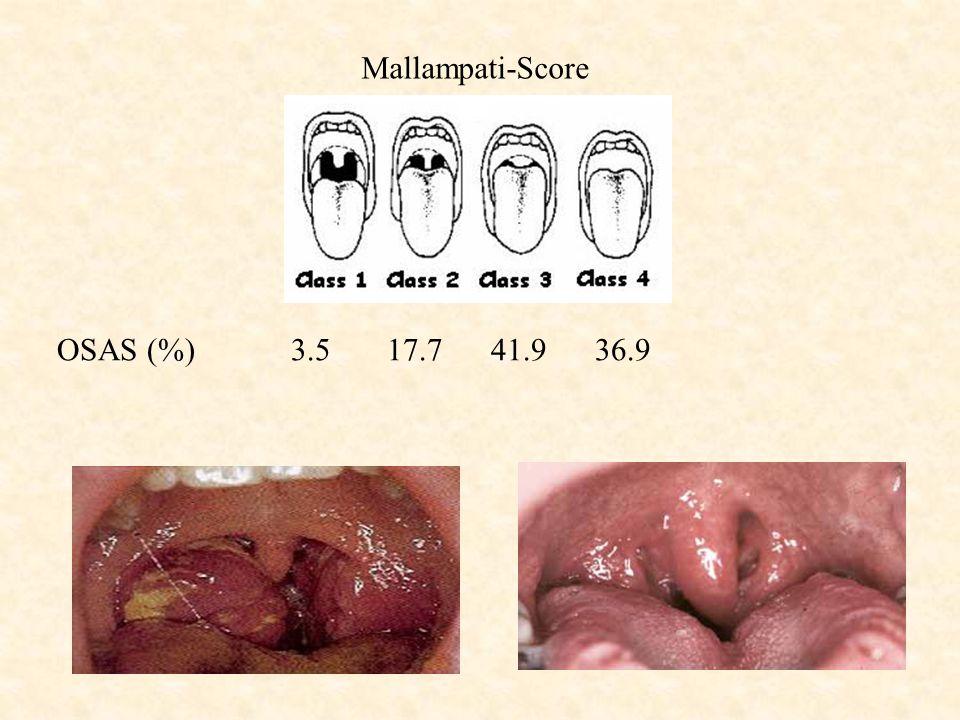 Mallampati-Score OSAS (%) 3.5 17.7 41.9 36.9