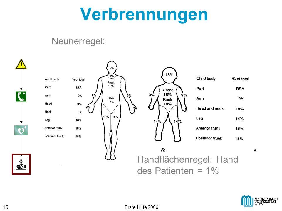 Erste Hilfe 200615 Verbrennungen Neunerregel: Handflächenregel: Hand des Patienten = 1%