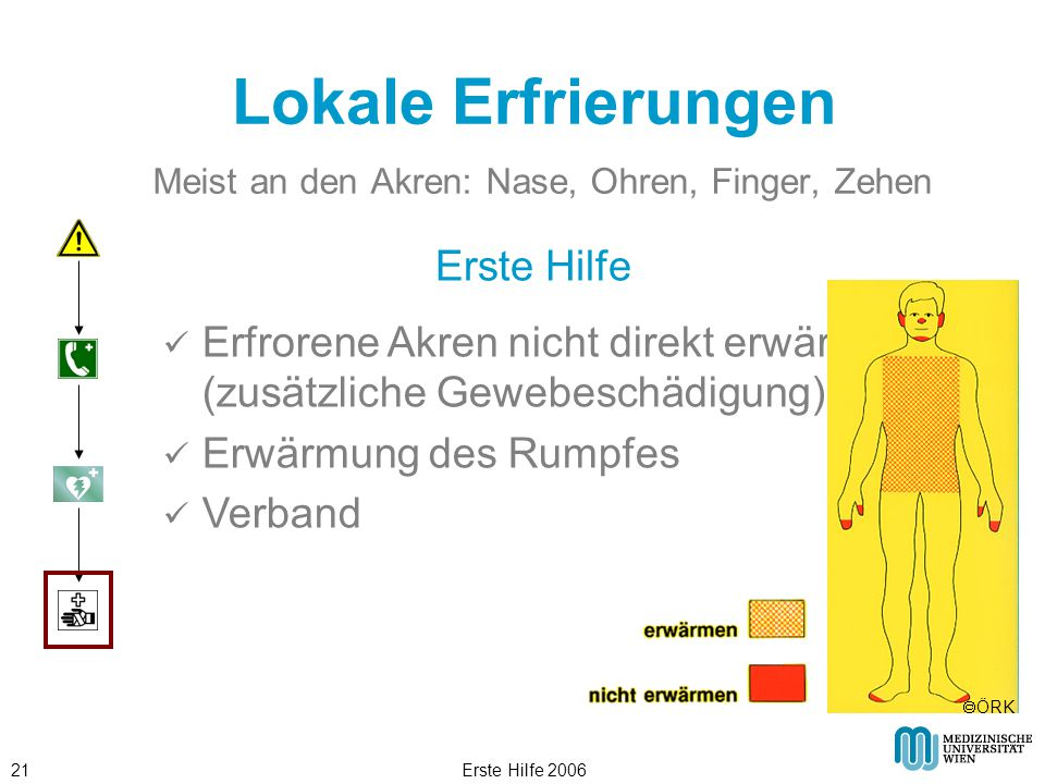 Erste Hilfe 200621 Lokale Erfrierungen Meist an den Akren: Nase, Ohren, Finger, Zehen Erste Hilfe Erfrorene Akren nicht direkt erwärmen, (zusätzliche