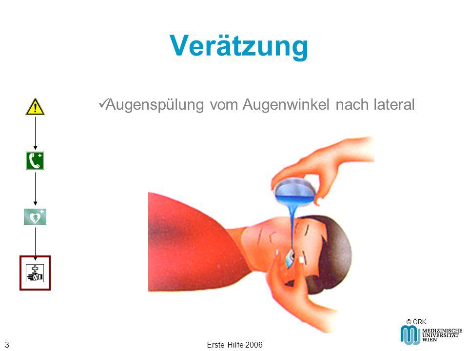 Erste Hilfe 20063 Verätzung © ÖRK Augenspülung vom Augenwinkel nach lateral