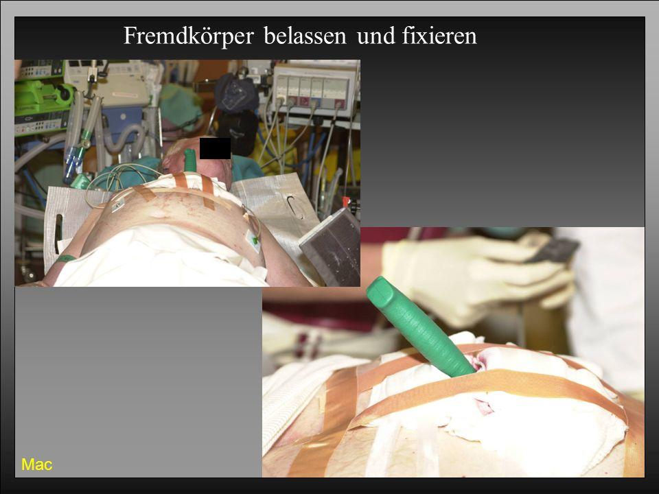 Erste Hilfe 200630 Mac Fremdkörper belassen und fixieren
