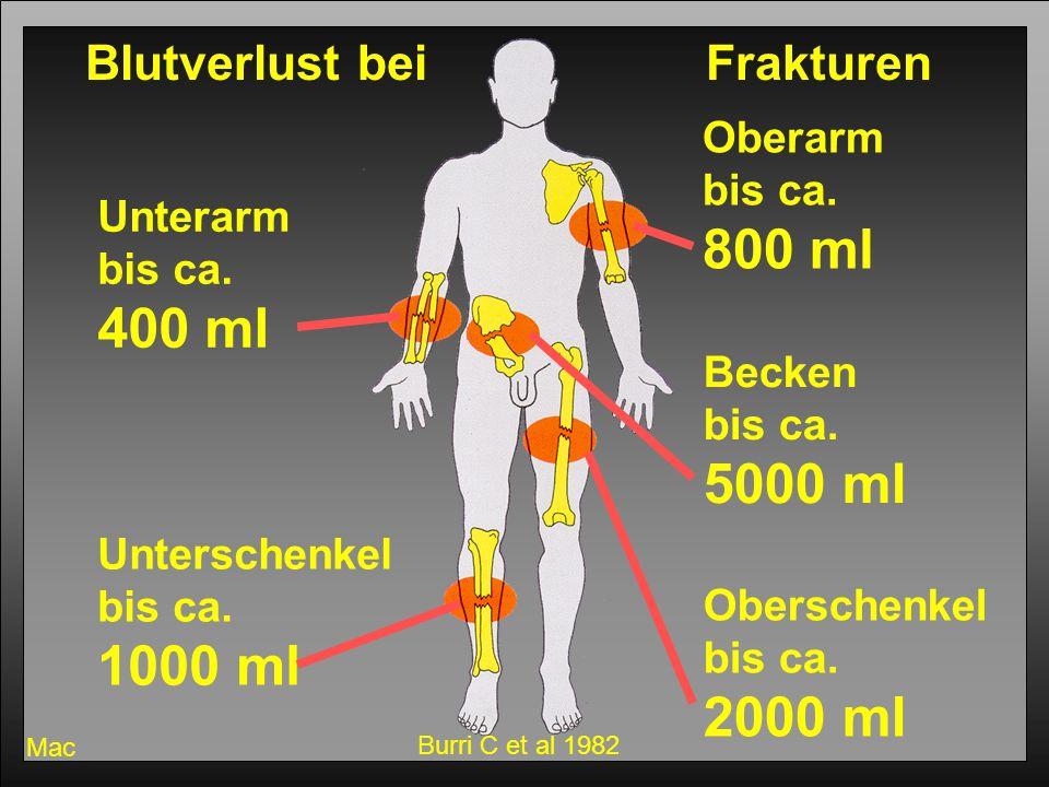Erste Hilfe 200635 Mac Blutverlust bei Frakturen Unterarm bis ca. 400 ml Oberarm bis ca. 800 ml Oberschenkel bis ca. 2000 ml Unterschenkel bis ca. 100