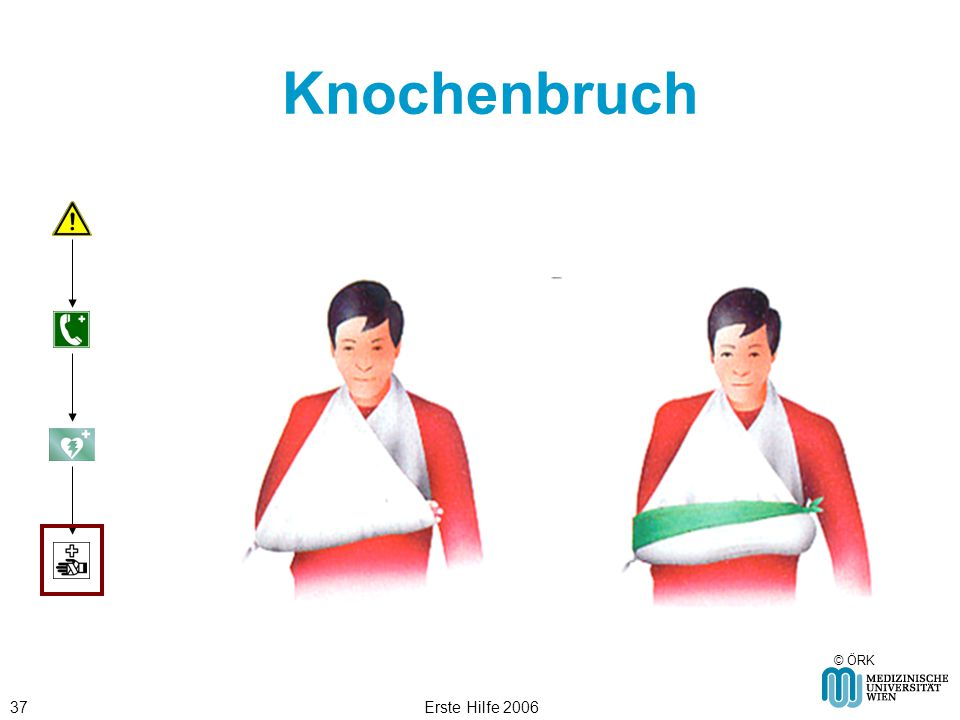 Erste Hilfe 200637 Knochenbruch © ÖRK