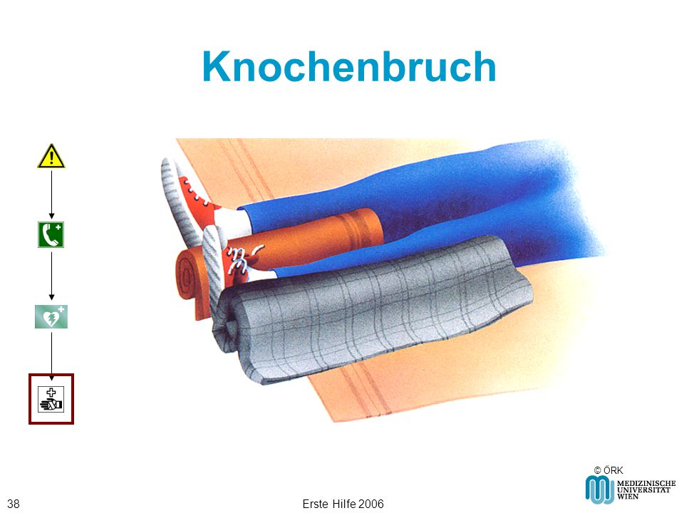 Erste Hilfe 200638 Knochenbruch © ÖRK