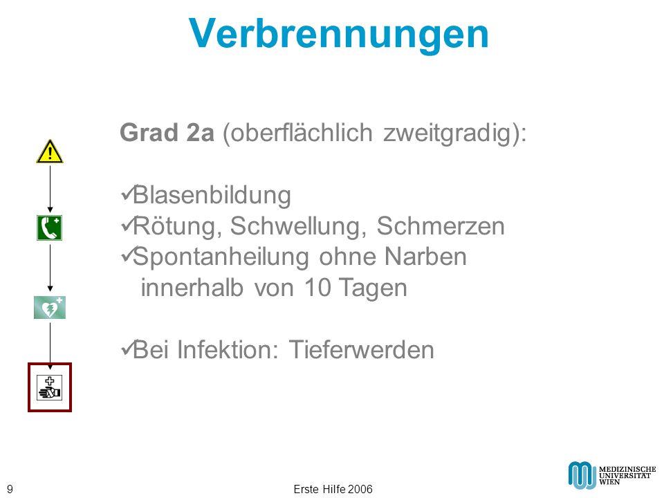 Erste Hilfe 20069 Verbrennungen Grad 2a (oberflächlich zweitgradig): Blasenbildung Rötung, Schwellung, Schmerzen Spontanheilung ohne Narben innerhalb