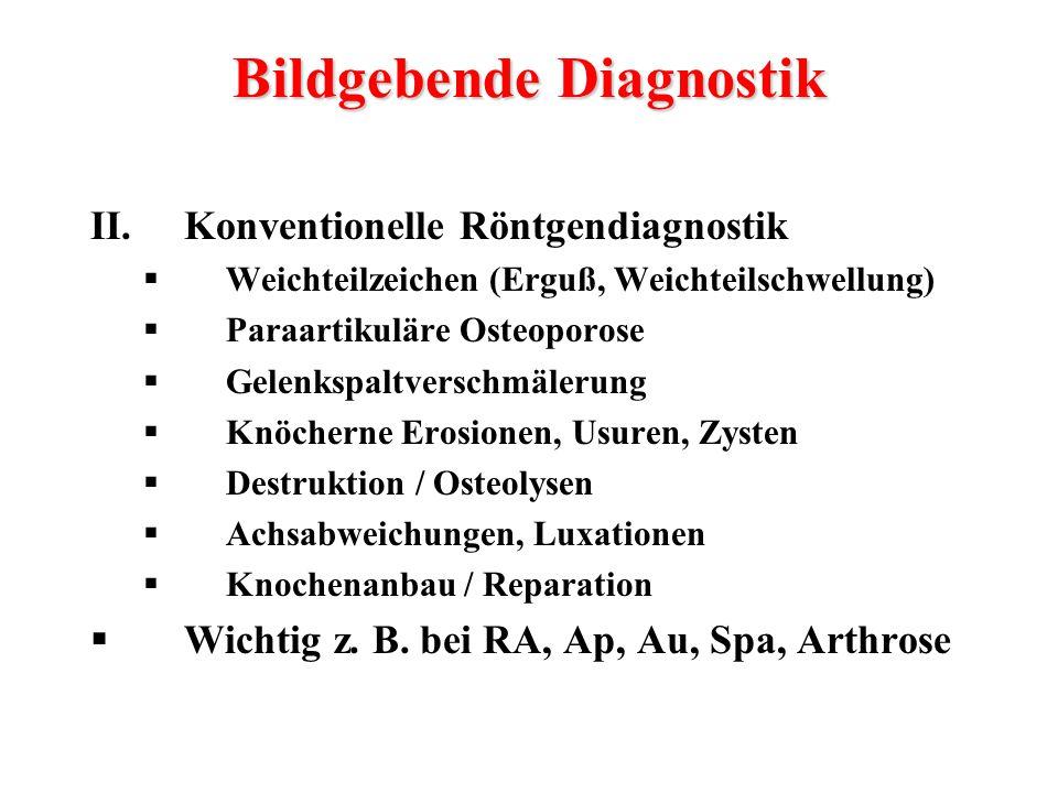 II.Konventionelle Röntgendiagnostik  Weichteilzeichen (Erguß, Weichteilschwellung)  Paraartikuläre Osteoporose  Gelenkspaltverschmälerung  Knöcher
