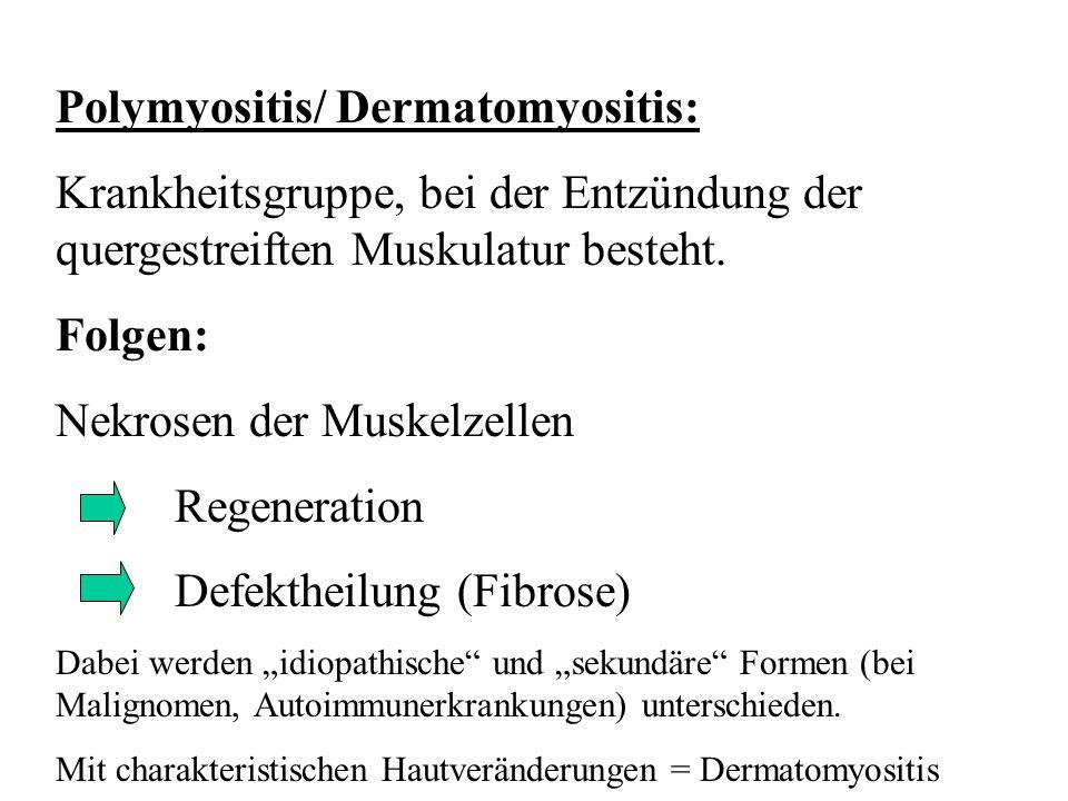Polymyositis/ Dermatomyositis: Krankheitsgruppe, bei der Entzündung der quergestreiften Muskulatur besteht. Folgen: Nekrosen der Muskelzellen Regenera