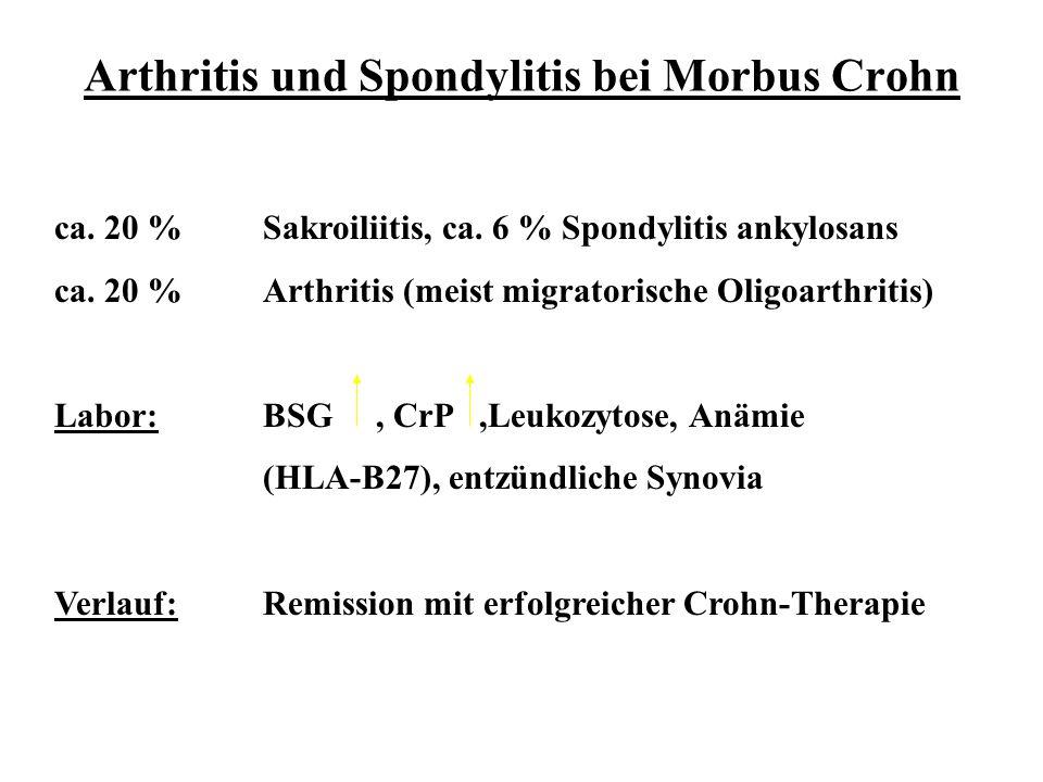 Arthritis und Spondylitis bei Morbus Crohn ca. 20 %Sakroiliitis, ca. 6 % Spondylitis ankylosans ca. 20 %Arthritis (meist migratorische Oligoarthritis)