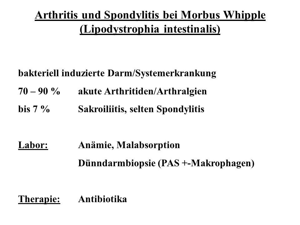 Arthritis und Spondylitis bei Morbus Whipple (Lipodystrophia intestinalis) bakteriell induzierte Darm/Systemerkrankung 70 – 90 %akute Arthritiden/Arth