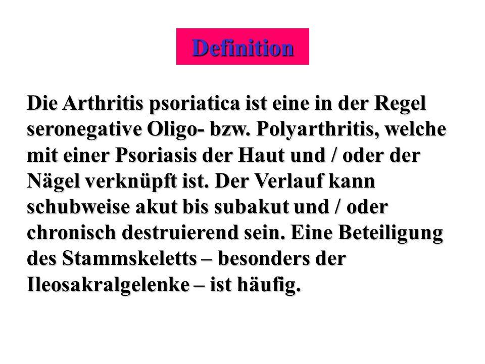 Definition Die Arthritis psoriatica ist eine in der Regel seronegative Oligo- bzw. Polyarthritis, welche mit einer Psoriasis der Haut und / oder der N