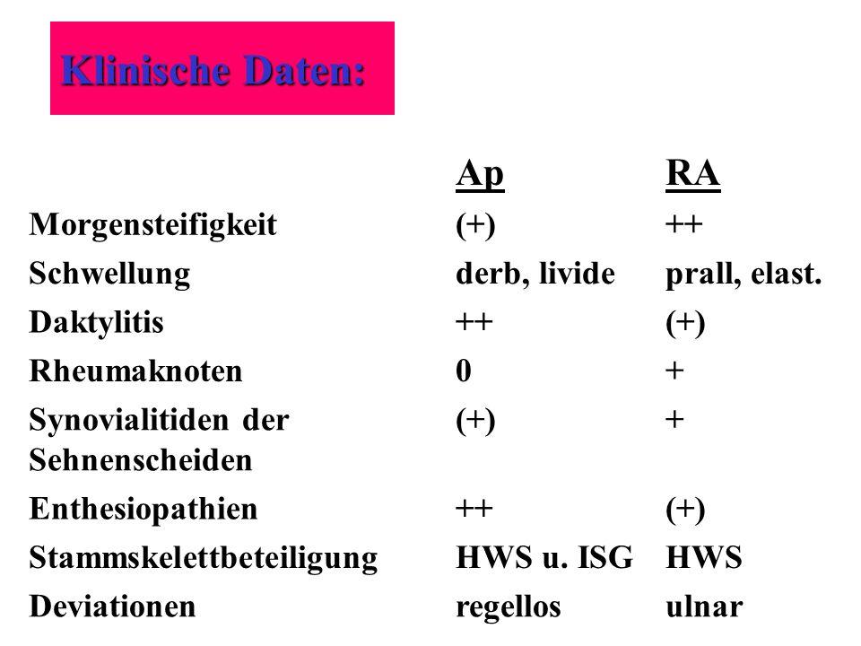 Klinische Daten: ApRA Morgensteifigkeit(+)++ Schwellungderb, livideprall, elast. Daktylitis++(+) Rheumaknoten0+ Synovialitiden der Sehnenscheiden (+)+