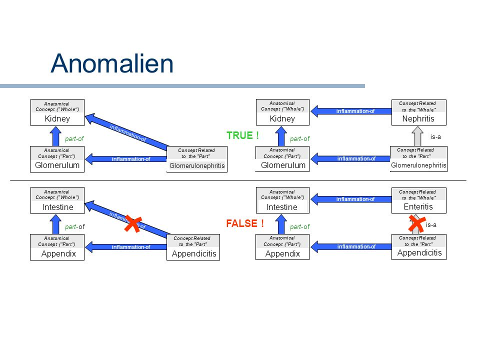 Anomalien inflammation-of Anatomical Concept (