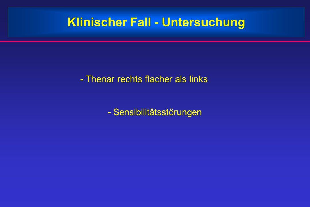 Klinischer Fall - Untersuchung - Thenar rechts flacher als links - Sensibilitätsstörungen